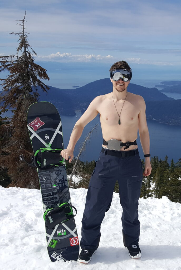 Ostomate snowboarder stands topless at the top of Cypress Mountain